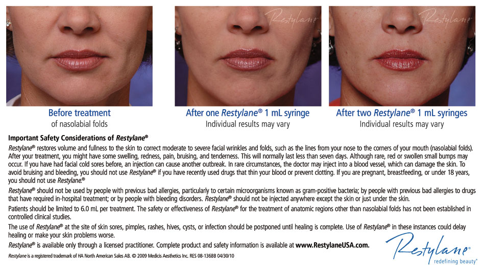 Dermal Fillers | Integrated Dermatology of Montrose
